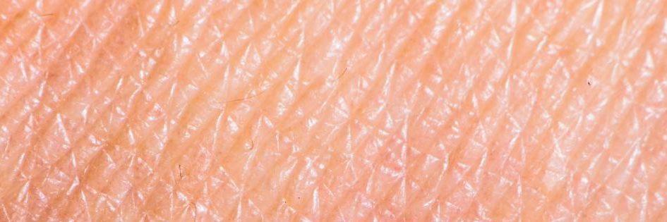 le dermatiti by Bioiris®