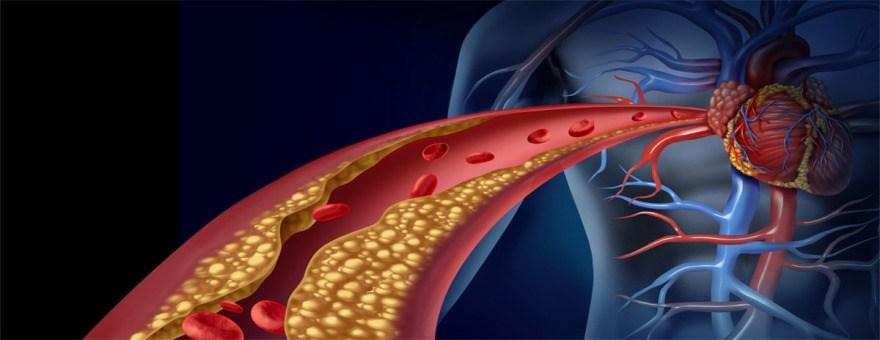 colesterolo in eccesso