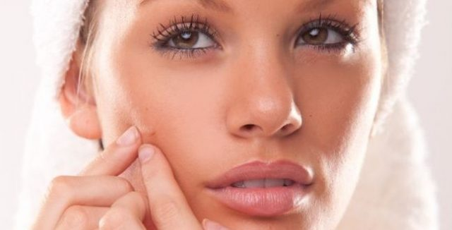 acne by bioiris®