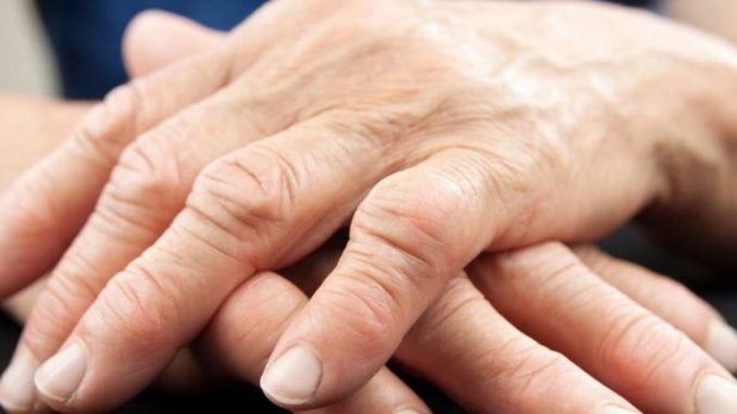artrite-bioris®